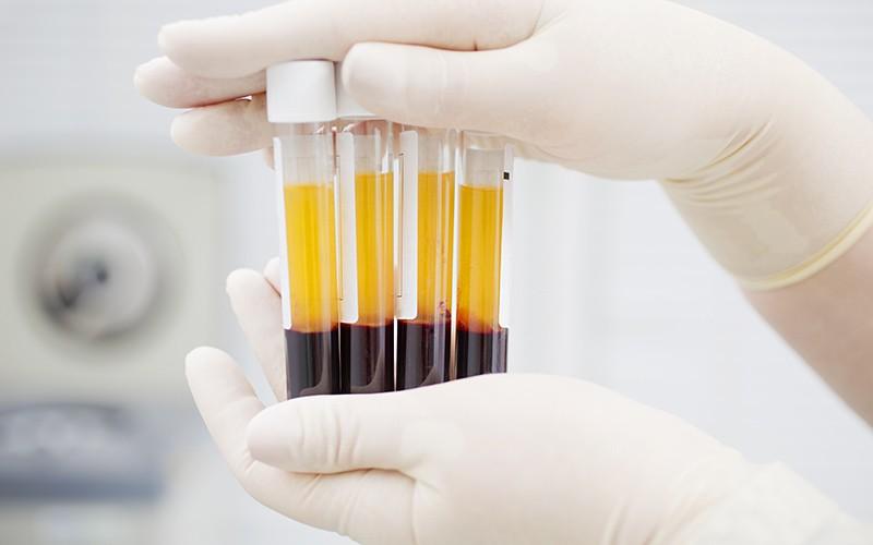 Quanto custa um exame de hiv particular